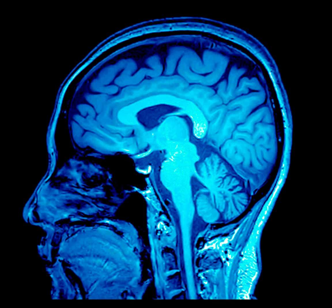 Imagen de aneurisma cerebral