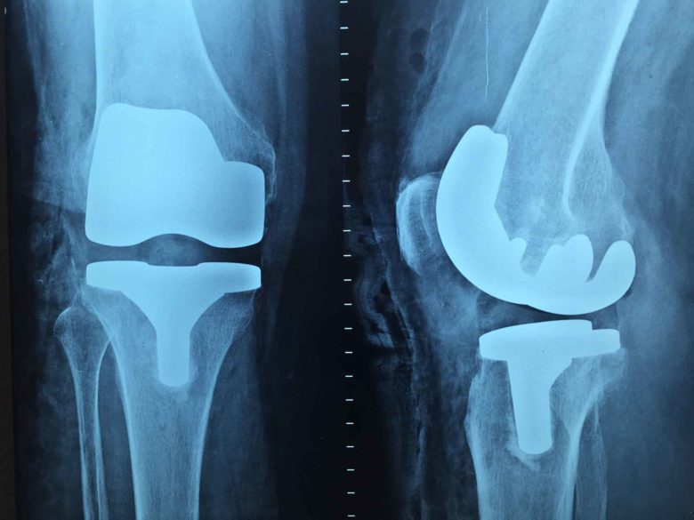 artroplastia de rodilla